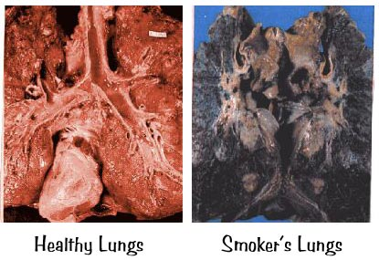 how to know if your lungs are damaged from smoking